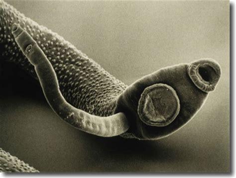 parasites picture 6