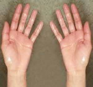 hyperhidrosis of the hands herbal cures picture 17