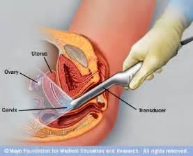diagram of man penis penetrating vigina picture 3