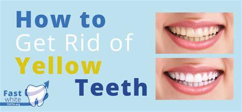 children yellow teeth whitening picture 6