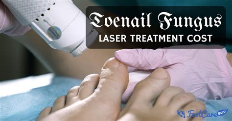 toe fungus removal by laser in az picture 1