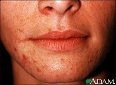 oral herpes hives picture 3