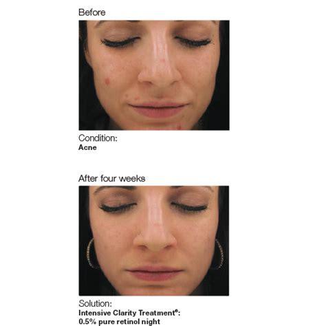 acne ling tukwila wa picture 18