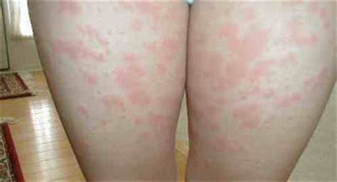 sharp pain inner left thigh herpes picture 6