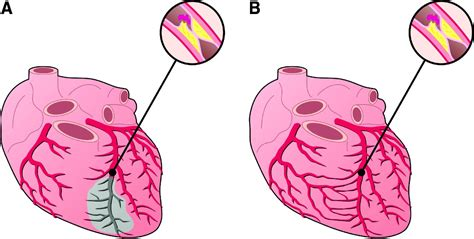 figure 8 of blood flow picture 5