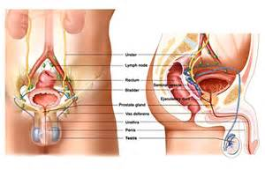 Prostate disorder inflamation picture 15