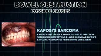 signs and symptoms of pediatric bowel obstruction picture 1