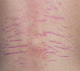 causes of stretch marks picture 14