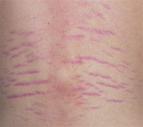 what causes stretch marks picture 5