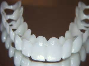 cheapest snap on upper teeth picture 2