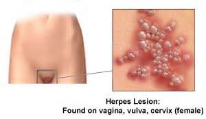 does everyone have an initial herpes outbreak picture 7