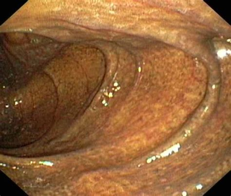 what is melanosis in the colon picture 5