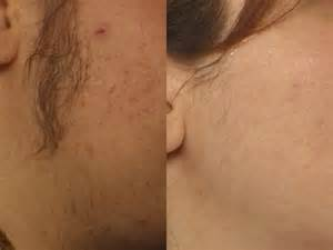 hair removal for women genital area clinics in picture 5