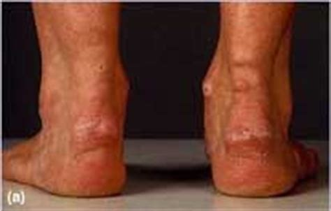 cholestrol deposits on skin picture 6