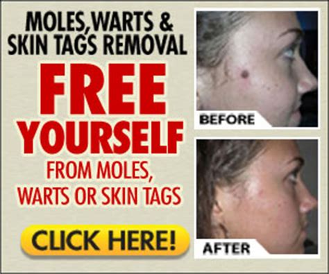 warts moles skin tag removal in ritm picture 7