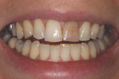 childrens teeth discoloration and veneers picture 6