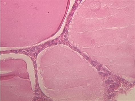 inactive thyroid glands picture 6