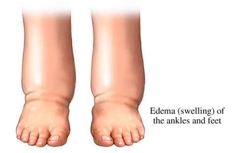 no appetite weight loss swollen foot are symptoms of picture 2