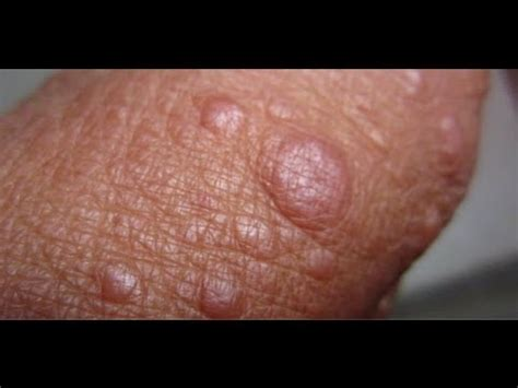 what are genital warts picture 5