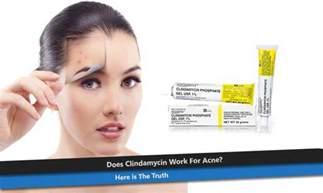 use of antibiotics acne treatment picture 9