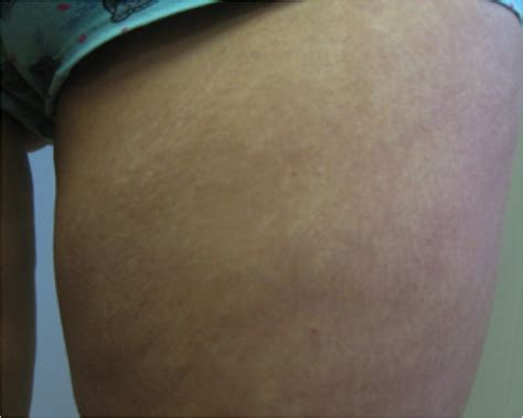 what are stretch marks picture 6