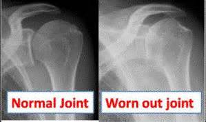 degenerative joint disease of the left shoulder picture 2