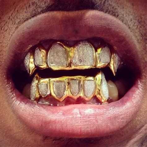 cheap teeth grills picture 15