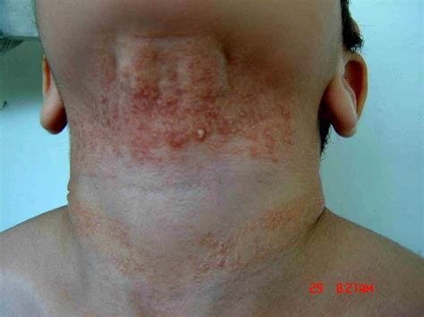 calcinosis from radiesse picture 1