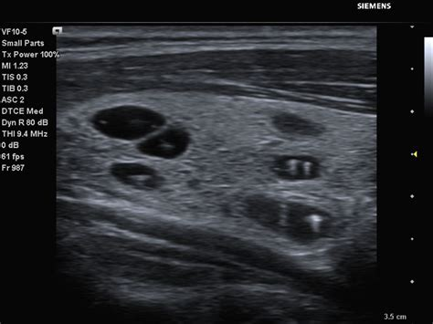 cysts in liver picture 7