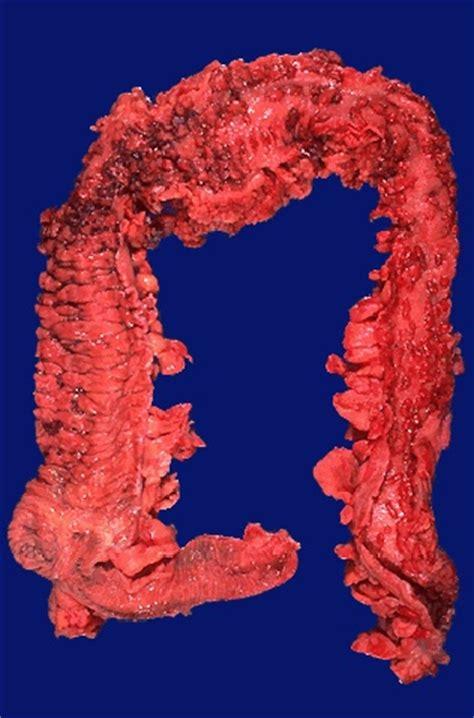 slave bladder torture story picture 2