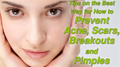 does tamoxifen stop acne picture 6