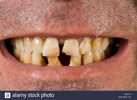 bad teeth picture 10