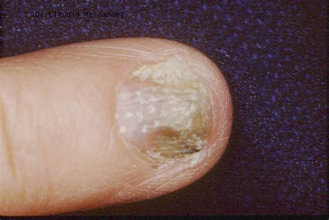 psoriasis of the liver picture 7