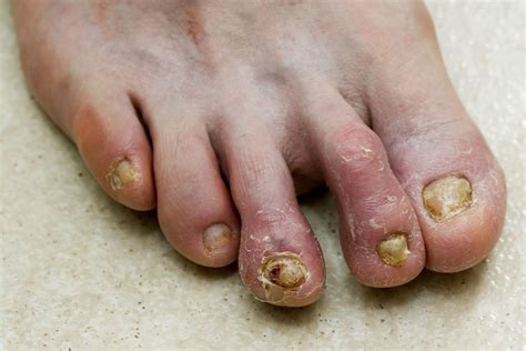 foot fungus picture 5