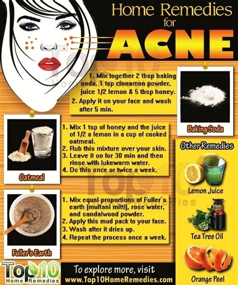 acne home remedy picture 9