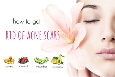 how to get rid of zits and acne picture 12