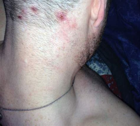acne on the back of your head picture 8