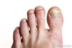 toenail fungus treatment vinegar picture 1