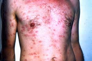 aids std's herpes syphillis and hiv picture 5