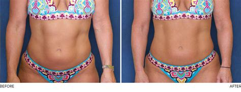 where can you buy pure garcinia cambogia in picture 13