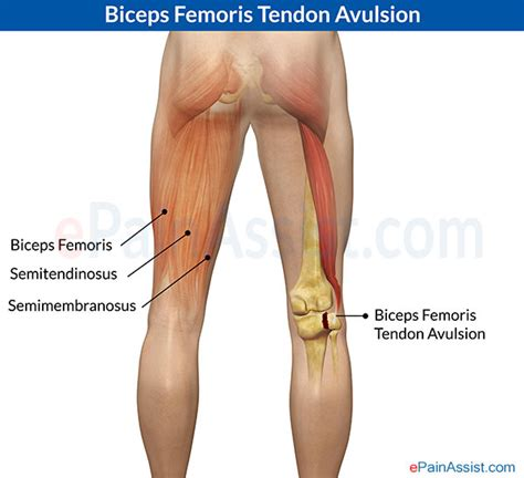 lump in leg muscle picture 6
