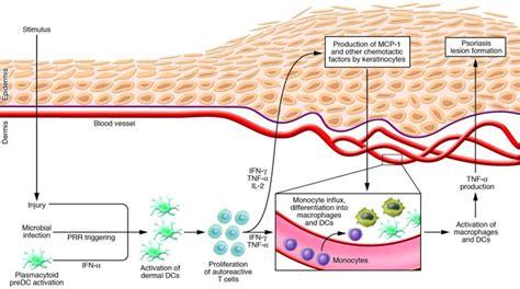 pathophysiology acne picture 10