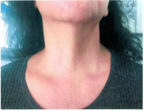 chinese medicine for thyroid cyst picture 3
