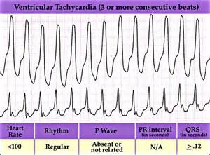 herbal cures for tachycardia picture 8