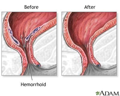 what to expect after hemorrhoid surgery picture 9