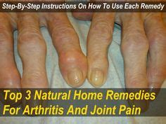 joint pain and barium picture 1