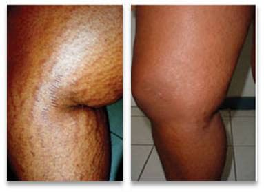 new cool beam laser stretch mark picture 1