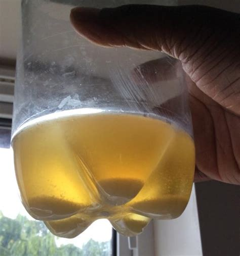 sedement in bladder picture 17