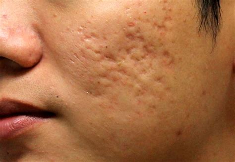 acne scar incision picture 1