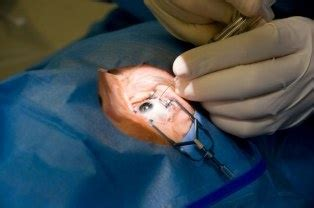 doctors in salt lake city performing parathyroid surgery picture 2